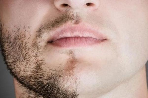 erkek yüz lazer epilasyon